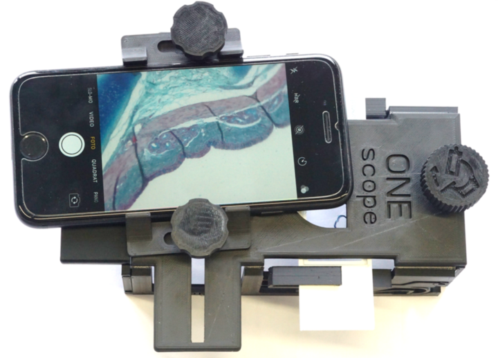 Low-Cost-Smartphone-Microscope OneScope with Smartphone